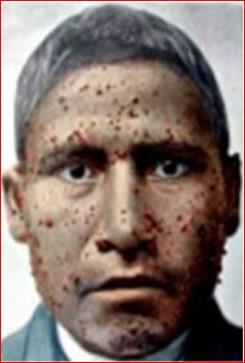 Berruga peruana a la cara